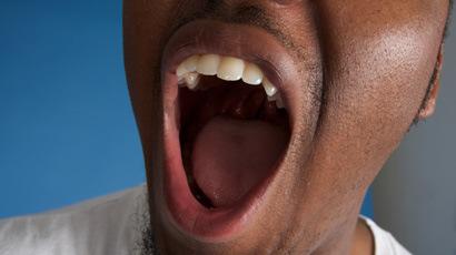 Remedy Bad Breath AKA Yuck Mouth